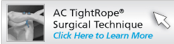 AC Tightrope