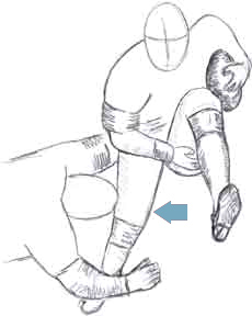Phoenix knee surgeon