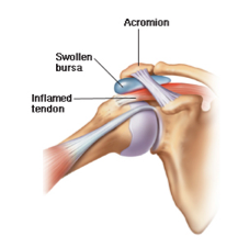 Shoulder doctor in Phoenix