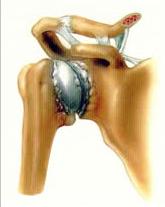 Shoulder Arthritis 2