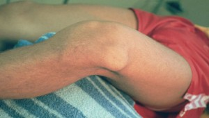 Dislocated-Knee