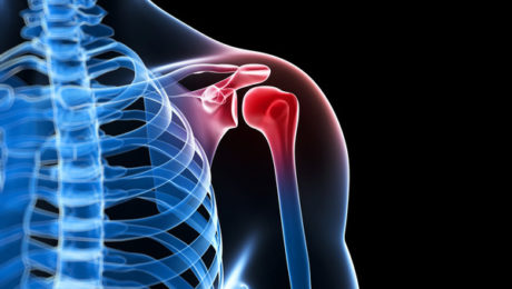 Treating Rotator Cuff Injury