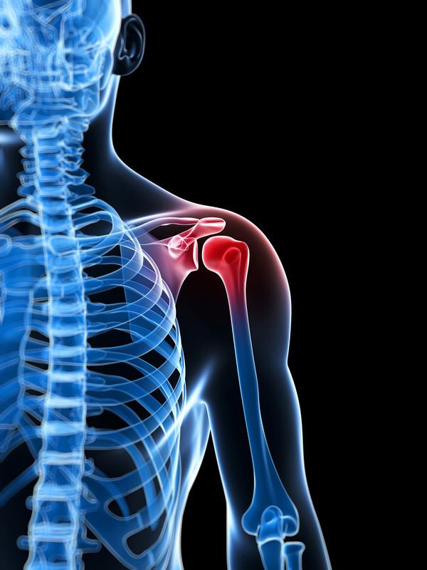 Treating Rotator Cuff Injury