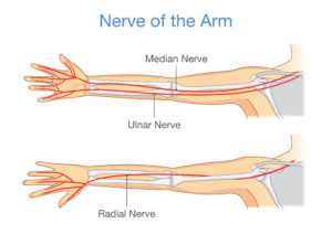 What Is Ulnar Neuritis